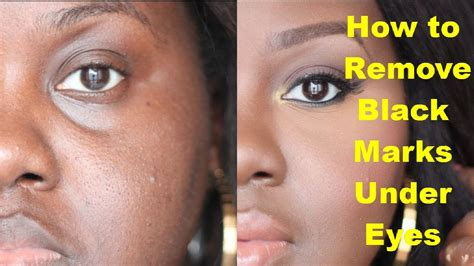How to Remove Black Marks Under Eyes? Get Rid of Dark
